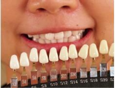 セルフホワイトニングと歯科医のホワイトニングの違い。
